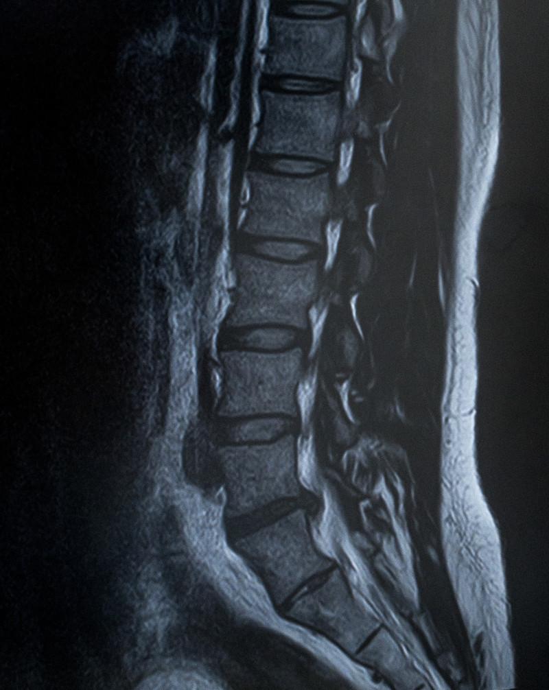 慢性腰痛やヘルニアの筋肉の緊張に対する鍼治療!のアイキャッチ